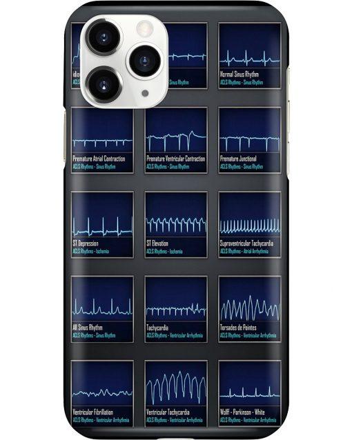 Paramedic ACLS ECG Rhythm phone case11